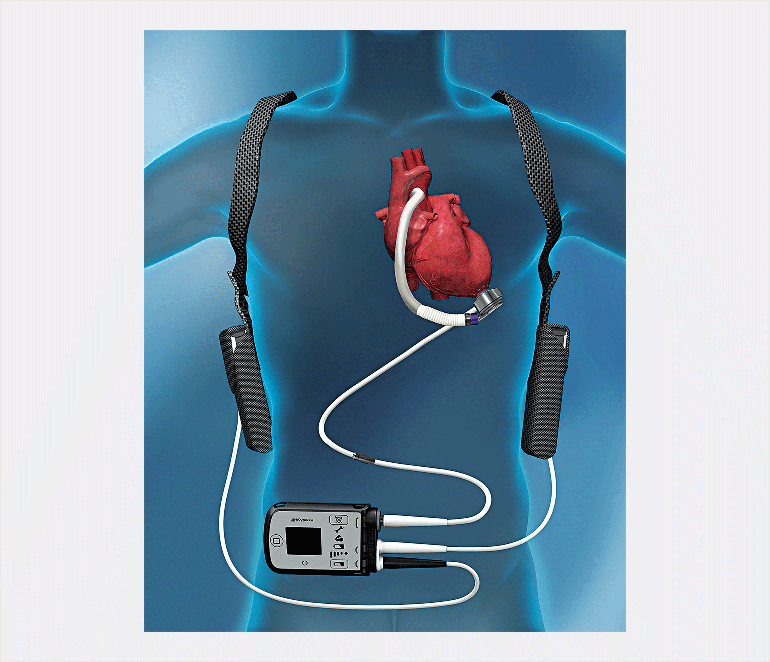 Heartmate3 mechanical circulatory support device