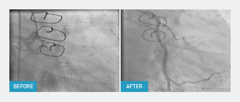 A chronic total occlusion before and after CTO PCI showing restored arterial blood flow