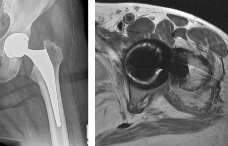 Figure 1 and 2 radiographs