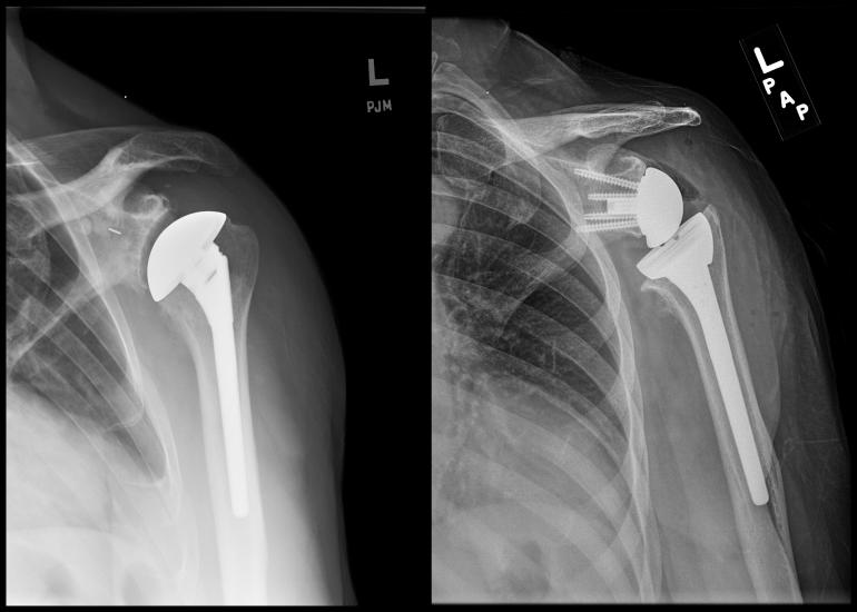 reverse shoulder arthroplasty orthobullets