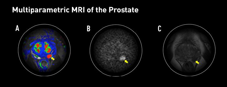 Resonancia magnética de próstata multiparamétrica dónde hacerla Palermo