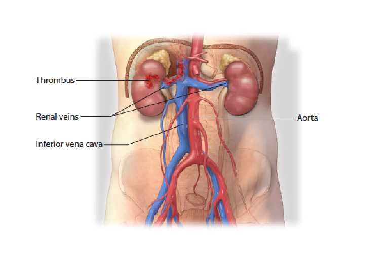 Improving The Safety Of Vena Caval Thrombectomy In Kidney Cancer With Tumor Thrombus Team Approach Mass General Advances In Motion